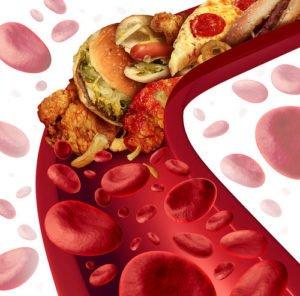 Colesterol en sangre