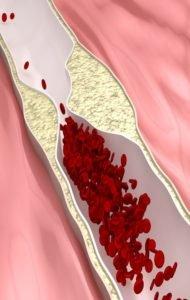 Colesterol - grasas