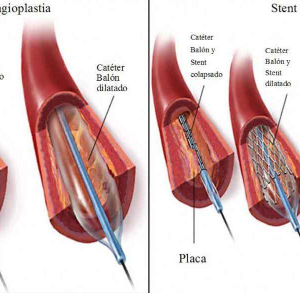 Angioplastia coronaria: Stents angioplastia Angioplastia coronaria: Stents Angioplastia coronaria instituto europeo Instituto Europeo de Salud Angioplastia coronaria