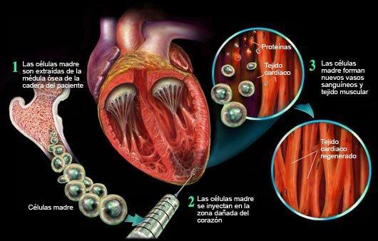 Células madre y regeneración cardiovascular