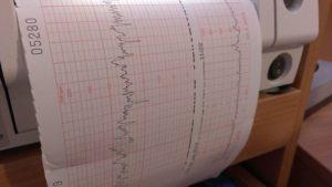 Cardiocheck: ecografía doppler cardiocheck Cardiocheck doppler ultrasound 381363 640 1 300x169