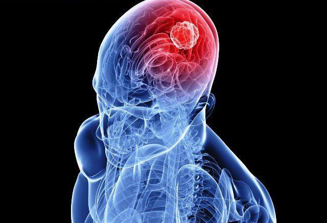 Ictus: infarto y derrame cerebral