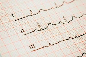 cardiocheck coronavirus Cuidando el corazón frente al coronavirus sinus heart rhythm on electrocardiogram record paper showing normal p wave pr and qt interval and t20 knv4kp