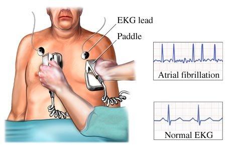 Cardioversión y desfibrilación cardioversión Cardioversión y desfibrilación Cardioversi  n y desfibrilaci  n