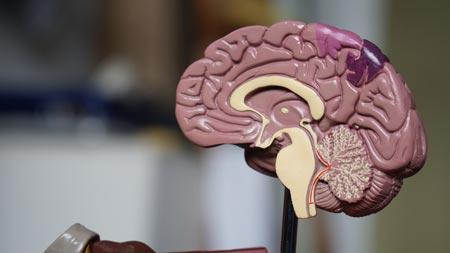 Ictus ictus Ictus: infarto y derrame cerebral robina weermeijer 3KGF9R 0oHs unsplash