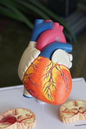 Hipertensión arterial hipertensión ¿Qué es la hipertensión arterial? robina weermeijer NIuGLCC7q54 unsplash
