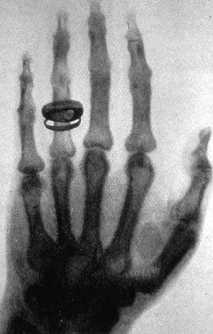 rayos x Rayos X: De hallazgo científico a fenómeno cultural 382px X ray by Wilhelm R  ntgen of Albert von K  llikers hand   18960123 02