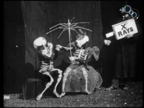 rayos x Rayos X: De hallazgo científico a fenómeno cultural hqdefault