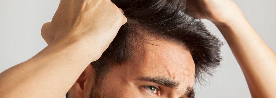 Alopecia: tipos, causas y cómo combatirla