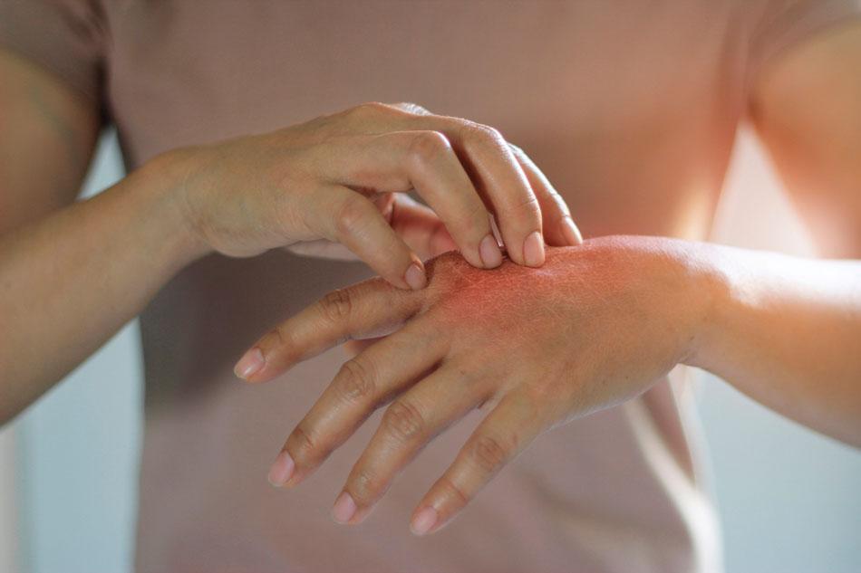 Todo lo que necesitas saber sobre la dermatitis atópica