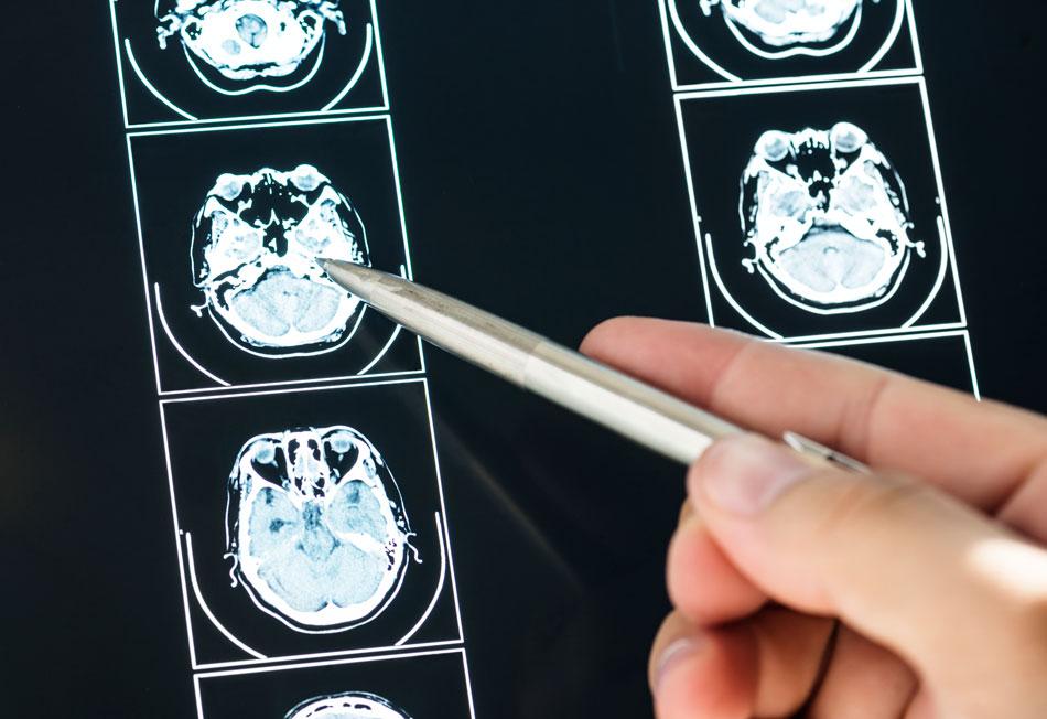 esclerosis múltiple enfermedad mil caras