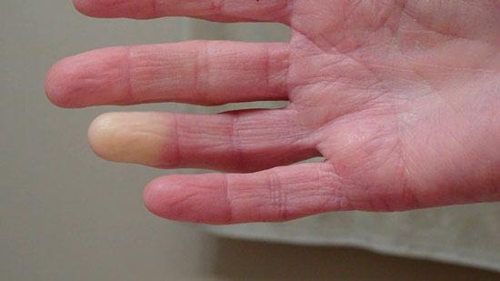 ¿Cómo se origina la esclerodermia?